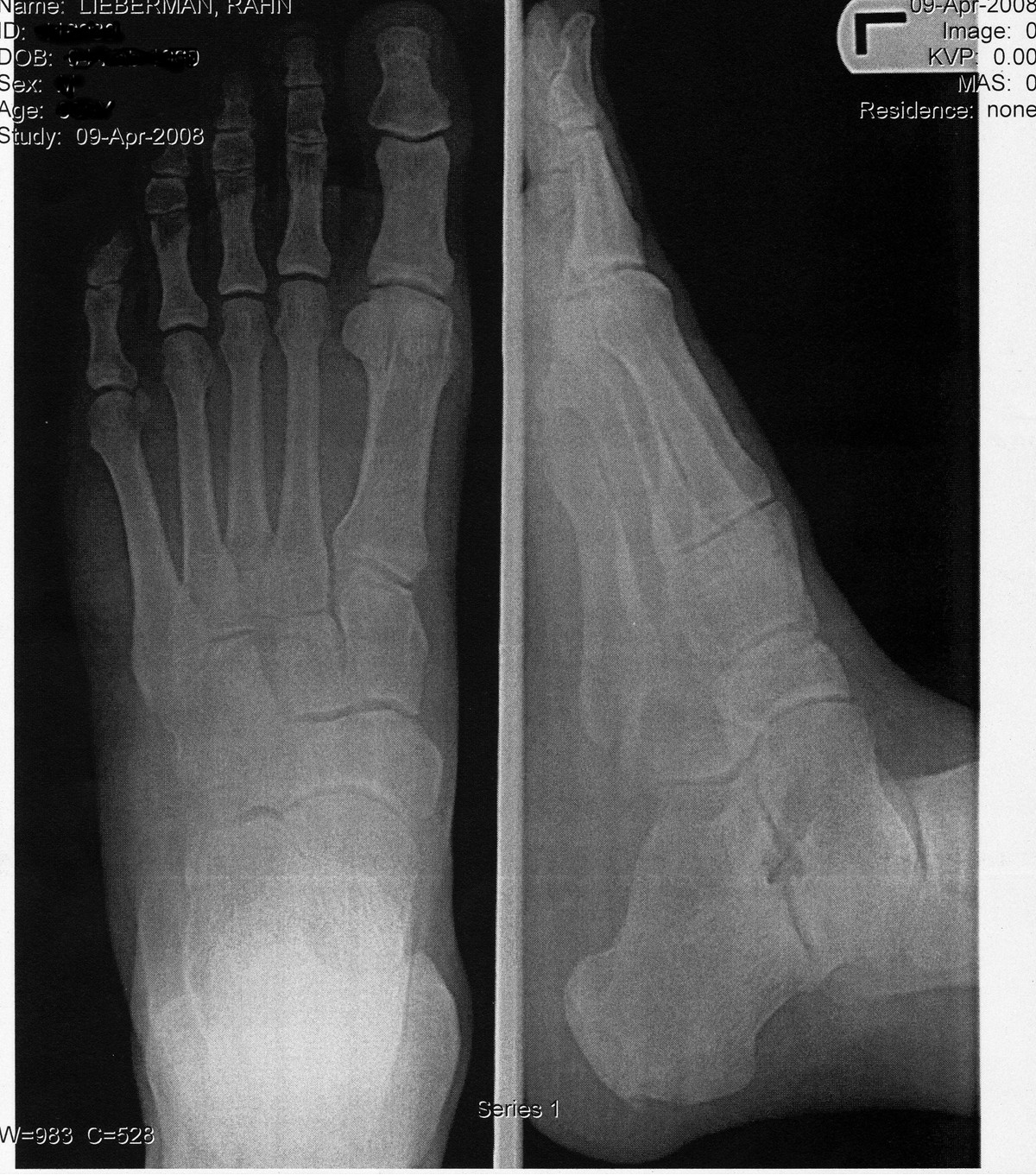 ibuprofen and stress fracture