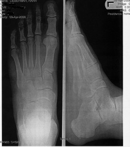 xray of my left foot
